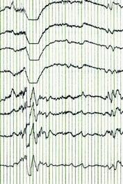 Part of an EEG trace