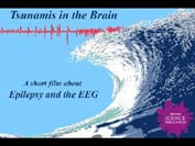 Tsunamis in the brain